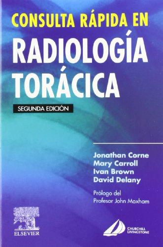 9788481748604: Consulta rápida en radiología torácica