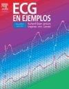 9788481749045: ECG en ejemplos, 2e (Spanish Edition)