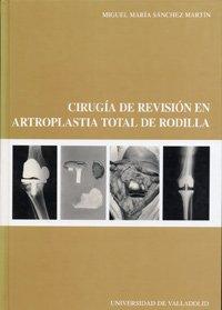 9788484483618: Cirugia De Revision En Artroplastia Total De Rodilla (Serie: Medicina Nº 68)