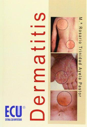 9788484548836: Dermatitis