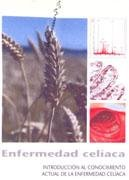 9788484737209: Enfermedad celiaca - introduccion al conocimiento actual de la enferme