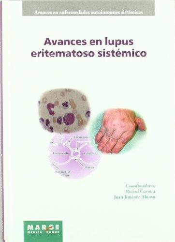 9788486684921: AVANCES EN LUPUS ERITEMATOSO