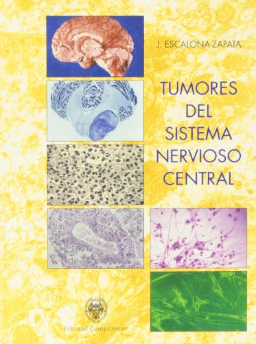 9788489365599: Tumores del sistema nervioso central / Central Nervous System Tumors (Spanish Edition)