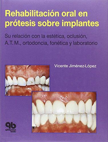 9788489873124: Rehabilitación oral en prótesis sobre implantes: Su relación con la Estética, Oclusión, A.T.M., Ortodoncia, Fonética y Laboratorio (Spanish Edition)