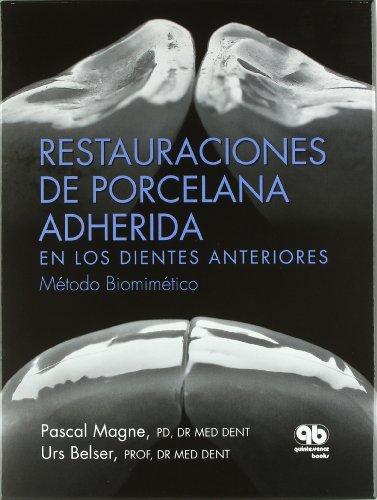 9788489873285: Restauraciones de porcelana adherida en los dientes anteriores, metodo biomimetico (libro con estuche)
