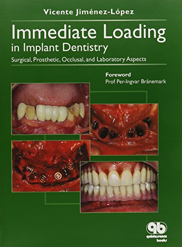 9788489873339: Immediate Loading In Implant Dentistry: Surgical, Prosthetic, Occlusal, And Laboratory Aspects