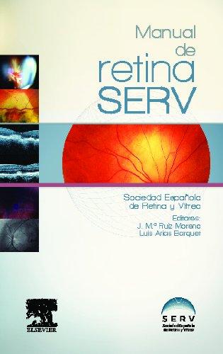 MANUAL DE RETINA SERV: Vv.Aa.