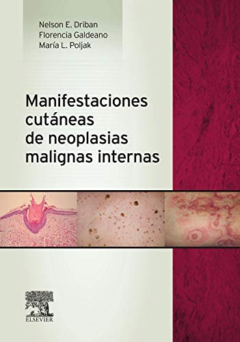 9788490225288: Manifestaciones cutáneas de neoplasias malignas internas