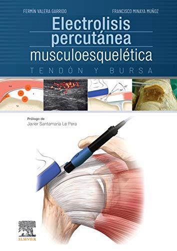 9788491130161: Electrolisis percutánea musculoesquelética + acceso web, 1e