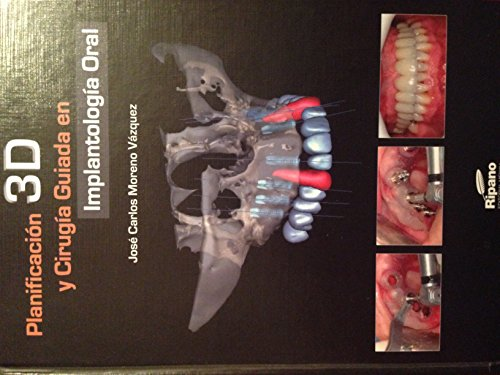 9788494023217: Planificación 3D y Cirugía Guiada en Implantología Oral