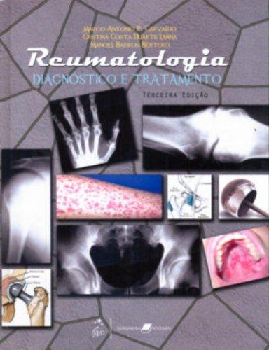 9788527714884: Reumatologia. Diagnostico E Tratamento (Em Portuguese do Brasil)