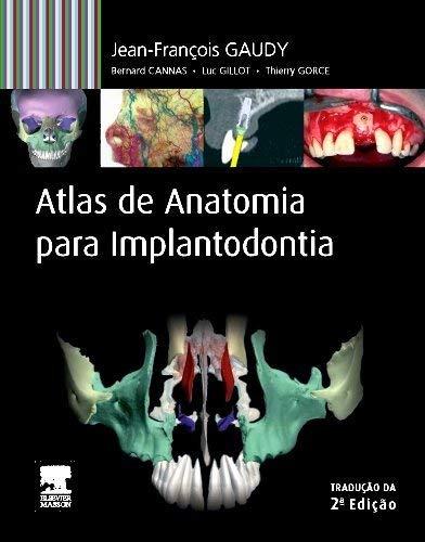 9788535269130: Atlas de Anatomia Para Implantodontia (Em Portuguese do Brasil)