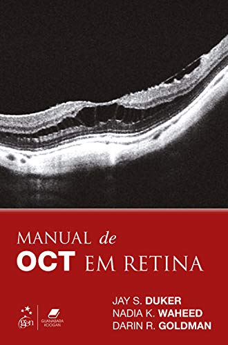 9788535282603: Manual de OCT em Retina