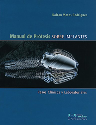 9788536700649: Manual de protesis sobre implantes / Manual of prosthesis about implants: Pasos Clinicos Y Laboratoriales / Clinical and Laboratory Steps (Spanish Edition)