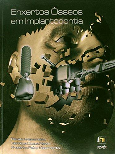 9788560842322: Enxertos Ósseos em Implantodontia (Em Portuguese do Brasil)