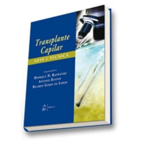 9788572419284: Transplante Capilar. Arte E Tecnica (Em Portuguese do Brasil)