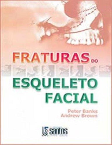 9788572883443: Fraturas do Esqueleto Facial