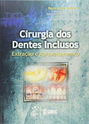 9788572883528: Cirurgia dos Dentes Inclusos. Extração e Aproveitamento (Em Portuguese do Brasil)