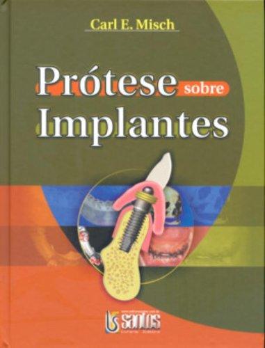 9788572885614: Prótese Sobre Implantes - Um Guia Passo A Passo (Em Portuguese do Brasil)
