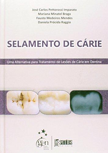 9788572888097: Selamento de Cárie (Em Portuguese do Brasil)