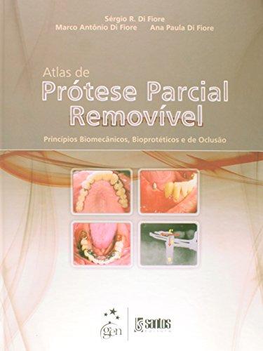 9788572888172: ATLAS DE PROTESE PARCIAL REMOVIVEL