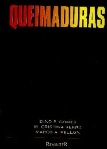 9788573090529: Queimaduras (Em Portuguese do Brasil)