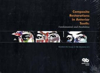9788587425591: Composite Restoration in Anterior Teeth: Fundamentals And Possibilities