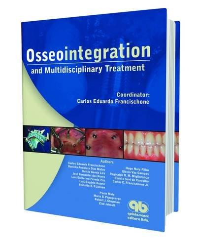 Osseointegration and Multidisciplinary Treatment - Carlos Eduardo Francischone