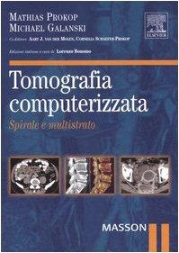 9788821428050: Tomografia computerizzata. Spirale e multistrato