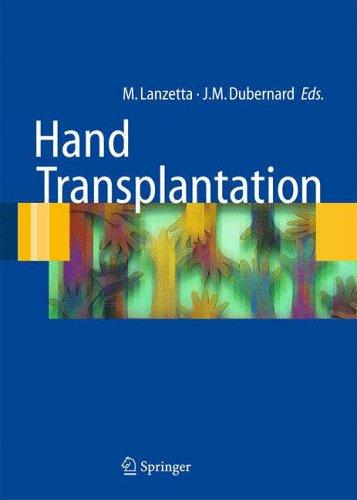Hand Transplantation: Marco Lanzetta