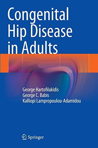 9788847054912: Congenital Hip Disease in Adults