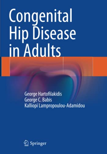 9788847058774: Congenital Hip Disease in Adults