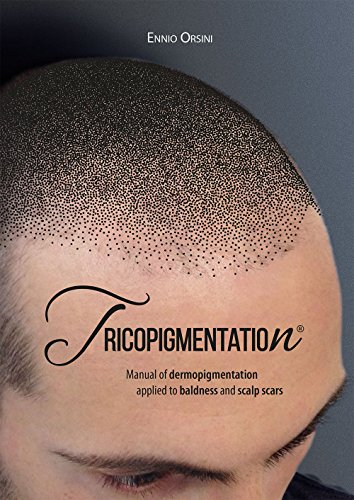9788899460020: Tricopigmentation. The manual of dermopigmentation applied to baldness and scalp scars