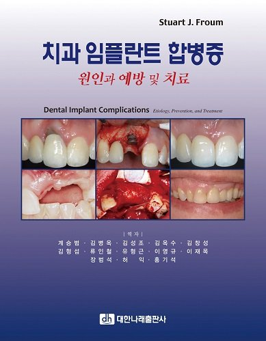 9788957412428: Dental Implant Complications (Korean edition)