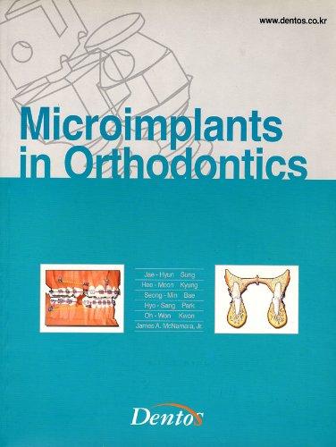 9788995660508: Microimplants in Orthodontics