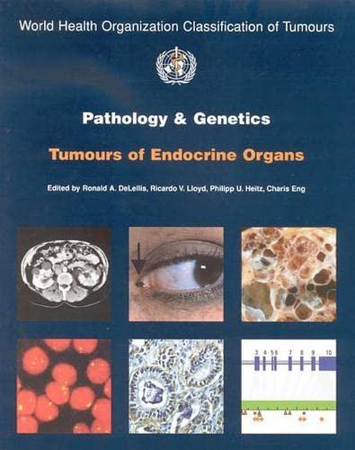 Pathology and Genetics of Tumours of Endocrine