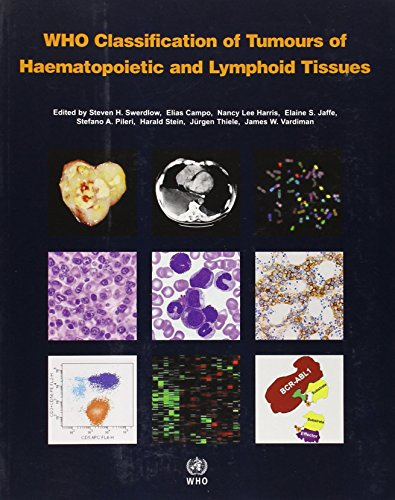 9789283224310: WHO Classification of Tumours of Haematopoietic and Lymphoid Tissue [OP] (IARC WHO Classification of Tumours)