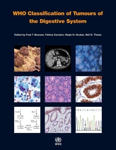 9789283224327: WHO Classification of Tumours of the Digestive System (IARC WHO Classification of Tumours)