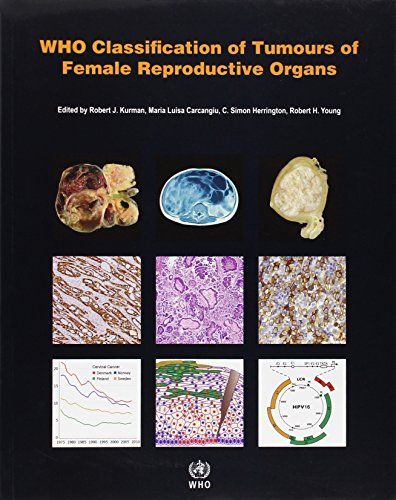 WHO Classification of Tumours of the Female Reproductive Organs (IARC WHO Classification of Tumours...