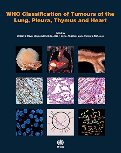 9789283224365: WHO classification of tumours of the lung, plura, thymus and heart (World Health Organization Classification of Tumours)