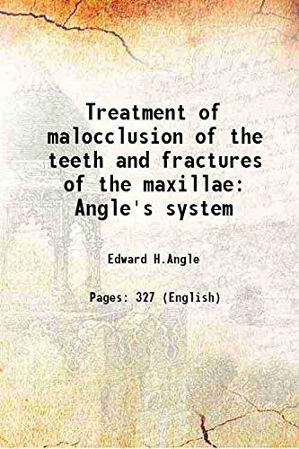 9789333625197: Treatment of malocclusion of the teeth and fractures of the maxillae Angle's system 1900 [Hardcover]