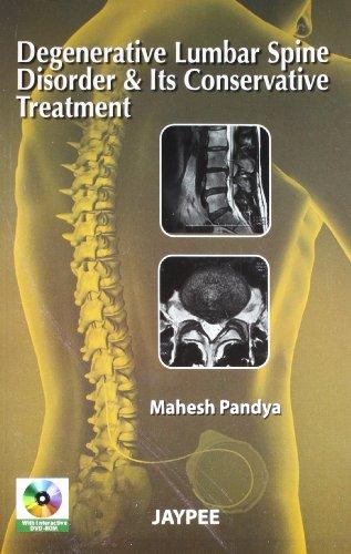 Degenerative Lumbar Spine Disorder & Its Conservative: Pandya