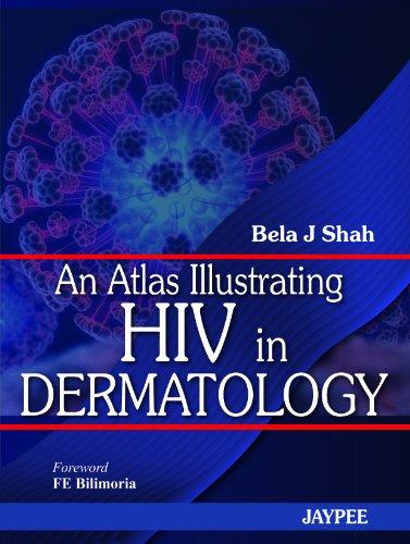 An Atlas Illustrating HIV in Dermatology: Bela J. Shah (Author) & F.E. Billimoria (Frwd)