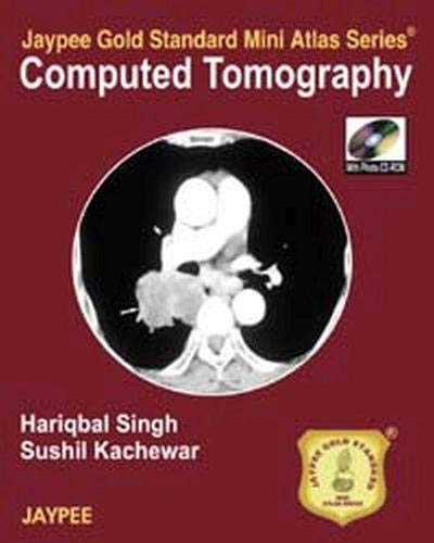 Computed Tomography (Series: Jaypee Gold Standard Mini Atlas): Hariqbal Singh,Sushil Kachewar
