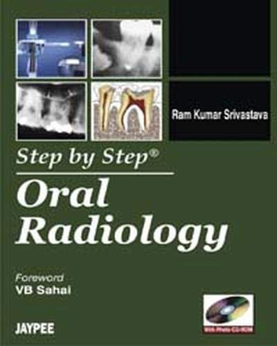 9789350250853: Step by Step Oral Radiology (with CD Rom)