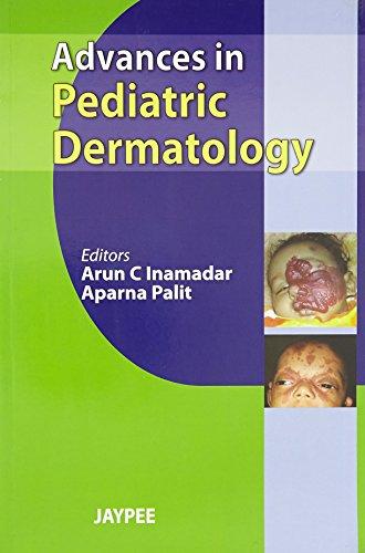 Advances in Pediatric Dermatology: Aparna Palit & Arun C. Inamadar (Eds)