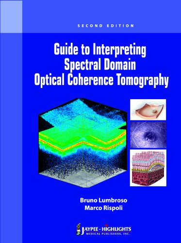 Guide to Interpreting Spectral Domain Optical Coherence: Lumbruso, Bruno, M.D.,