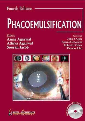 Phacoemulsification (Hardback): Amar Agarwal, Athiya Agarwal, Soosan Jacob