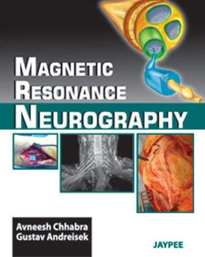 9789350255681: Magnetic Resonance Neurography