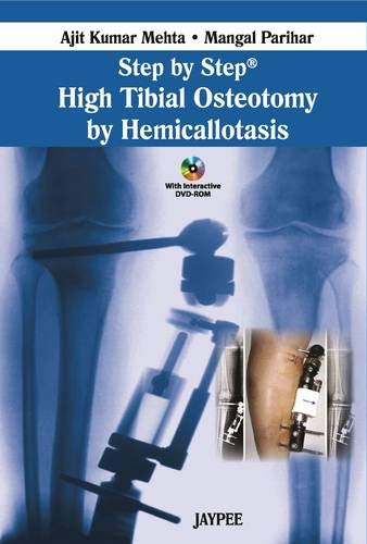 Step by Step High Tibial Osteotomy by: Mehta Ajit Kumar